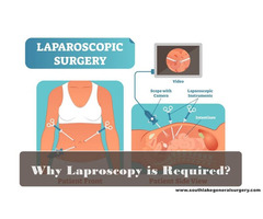 Why Laparoscopy is required? Best Laparoscopic Surgeon