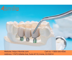 Easy to Dental Implant Procedure Painless Tooth