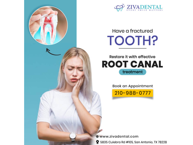 Save Your Damaged Teeth With Root Canal Specialist in San Antonio | free-classifieds-usa.com
