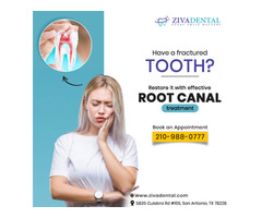 Save Your Damaged Teeth With Root Canal Specialist in San Antonio