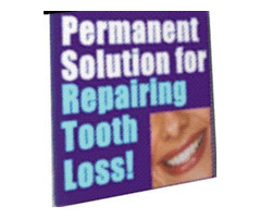The Only PERMANENT Solution To Repairing Tooth Loss