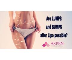 Aspen - Liposuction Lumpy and Bumpy