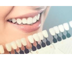 Finding The Best Teeth Whitening Dentist