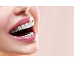 Get Six Month Braces Treatment at Miami Modern Dental