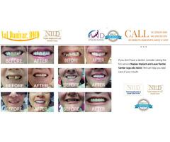 Get the best service of Dental Bridges in Naples, FL - Shine Smile