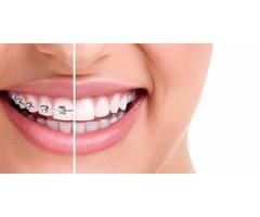 Somerset Orthodontics