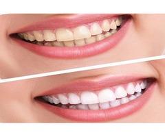 Dental Care Somerset