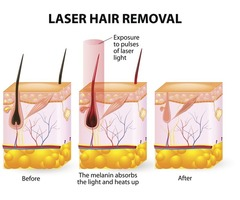 Laser hair removal cypress