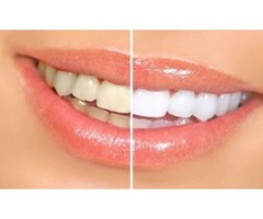 teeth whitening spa houston