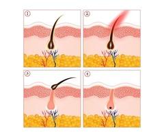 Laser hair removal houston | best laser hair removal