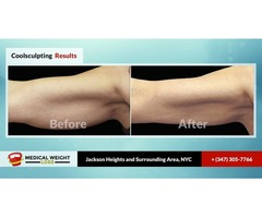Avail CoolSculpting Treatment in NYC By Medical Weight Loss PC