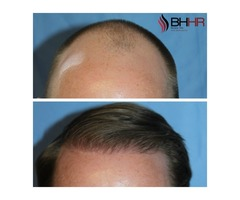 Hair Restoration at Beverly Hills, California