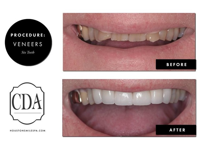 Teeth Cleaning or Teeth Whitening Dentistry in Houston TX | free-classifieds-usa.com