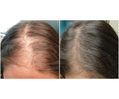 Anti aging treatment Doctor